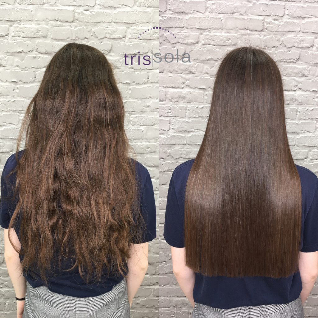 TRISSOLA BEFORE AND AFTER TREATMENT